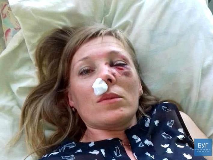 Судили волинянина, який зламав ніс колишній дружині